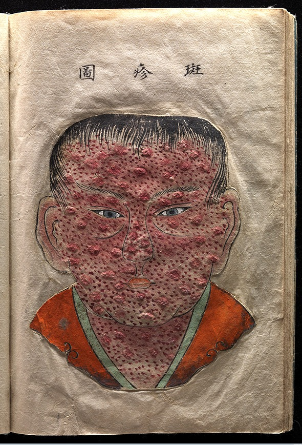 Textured watercolor illustration of a Japanese patient with smallpox. Published in Toshin seiyo [The essentials of smallpox], by Kanda Gensen, c. 1720. Via Wellcome Images.